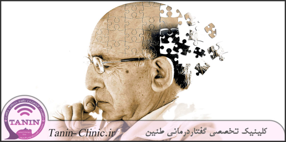 بیماری-آلزایمر
