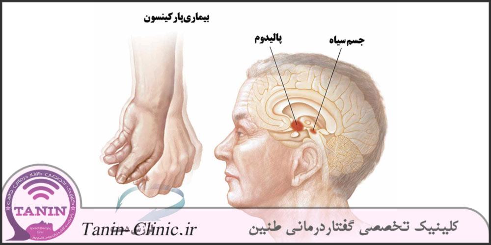 بیماری-پارکینسون